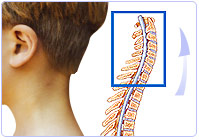 benefits neck traction